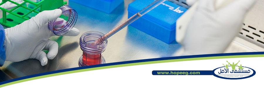 ما هي مدة بقاء الكحول في الدم والبول، وكيف يتم اختبار الكحول؟