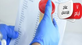 برنامج علاج الادمان فى 7 أيام - مستشفى الأمل